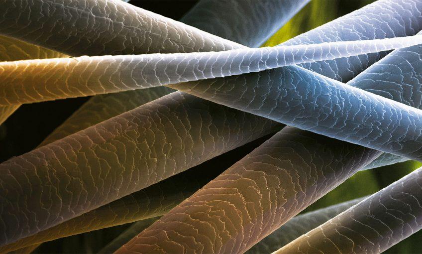 le poil se retrouve aussi bien chez les animaux que chez les plantes