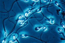 Spermatozoïdes humains / © R. Wagner, W. Bettigofer, J.-M. Babalian, P. Galliker et R. Birke/P. ArnolD (biosphoto)