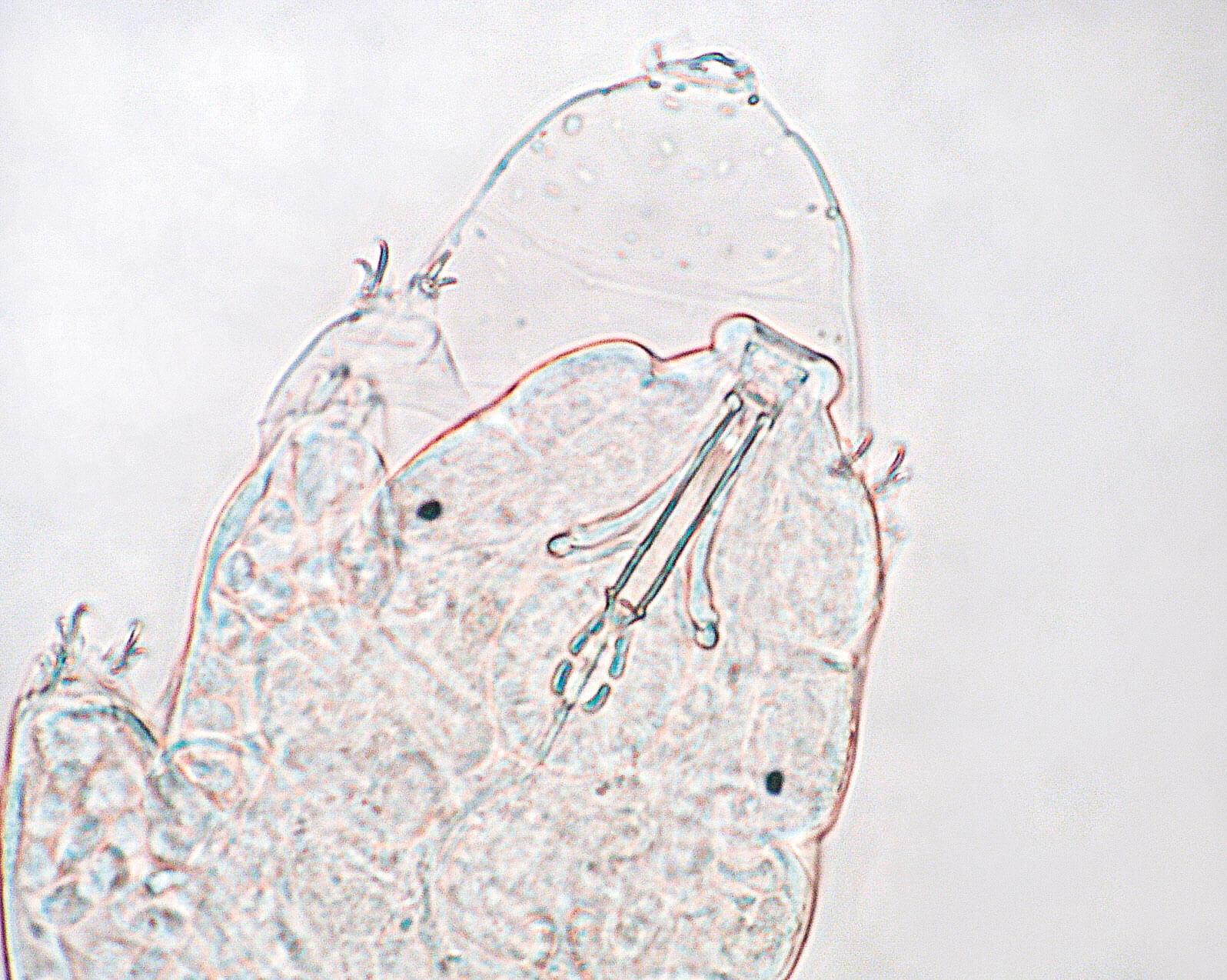 Le tardigrade, p'tit bonhomme à huit pattes