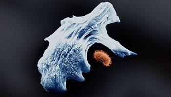 Les amibes se nourrissent par phagocytose:…