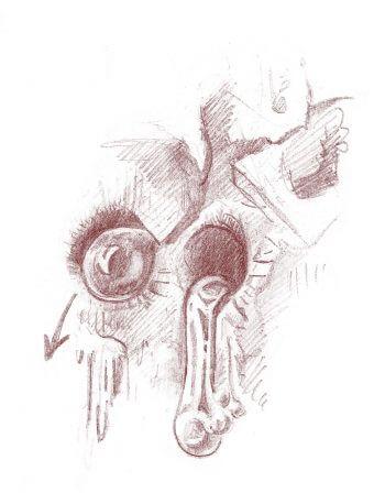 Dessin de trous pratiqués par un pic tridactyle pour extraire la sève de l'arbre.